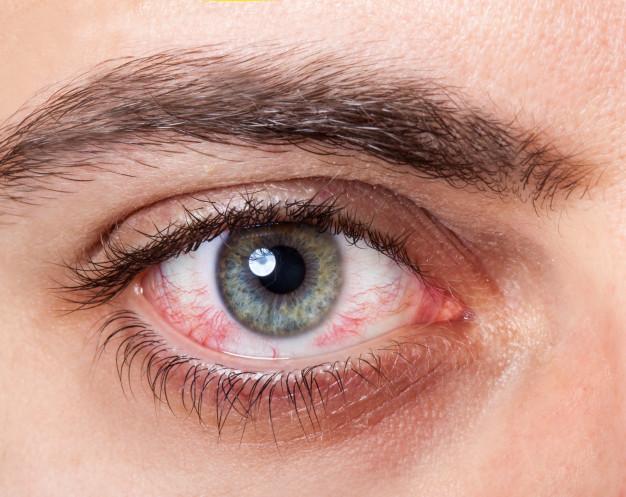 olhoseco